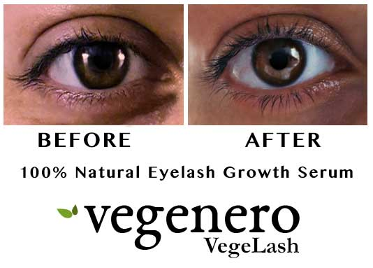 VegeLash Lash Growth Therapy Before-After Results